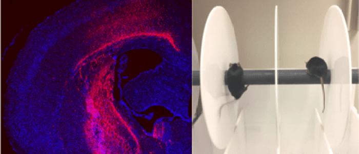 Gene editing reverses Huntington's in mouse model