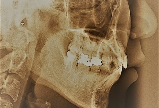 Building a Tougher Tooth