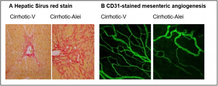 Researchers find a promising new approach for treating liver cirrhosis