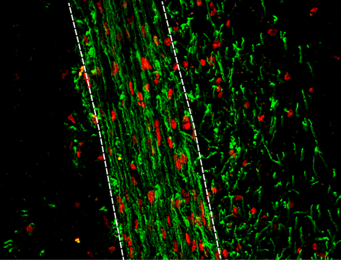 New drug target for remyelination in MS