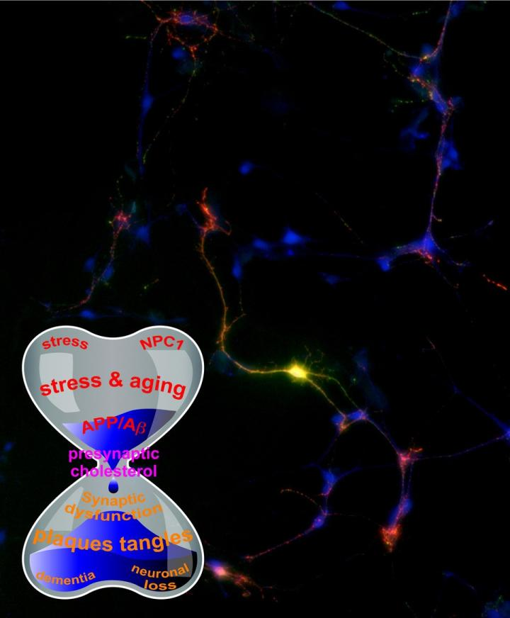 Scientists propose new theory on Alzheimer's, amyloid connection