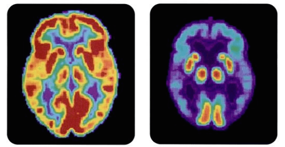 Link Found Between Chronic Pain And Prematurely Aging Brains
