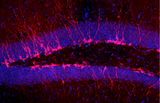 Young adult-born neurons in the hippocampus (pink) surrounded by mature cells (blue). Image courtesy of René Hen/Columbia University.