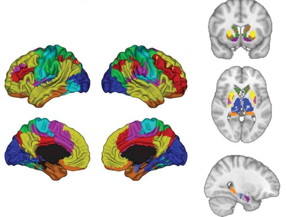 AI looks at brain scans to decide if depression meds likely to work