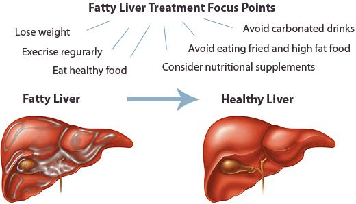 treatment of fatty liver