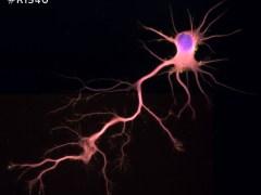 Rat Neurons-hippocampal #R1540