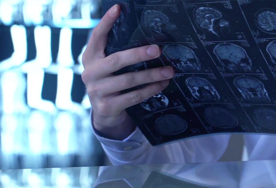 Europe to take up brain disorders challenge