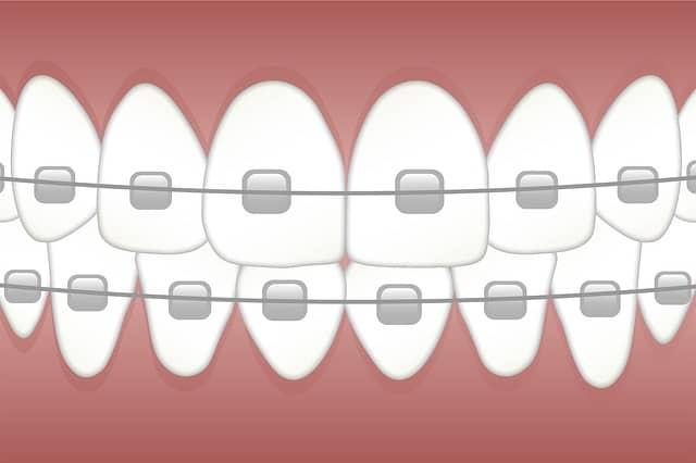 orthodontist treatments