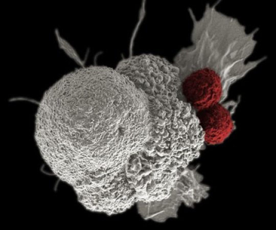 False-colored scanning electron micrograph depicts oral squamous cancer cell (white) being attacked by to T cells (red), part of the natural immune response. Photo Credit: National Cancer Institute