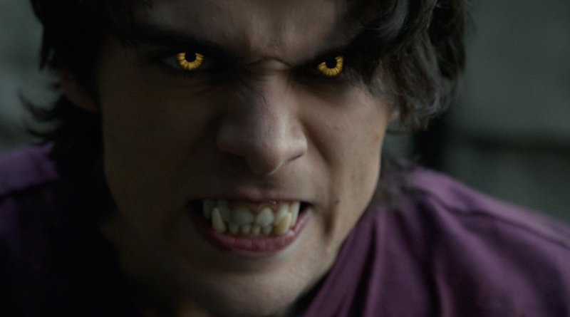 ZOMBPOCALYPSE NOW: TEEN WOLF Is Full Of Spiders And Filler
