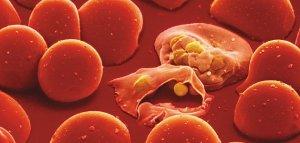 Phenom-Malaria-parasite-631.jpg__800x600_q85_crop