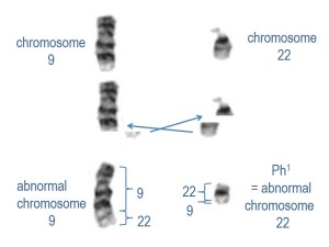 These banded chromosomes show how the ends of chromosomes 9 and 22 are swapped to make the Philadelphia chromosome that causes chronic myeloid leukaemia.