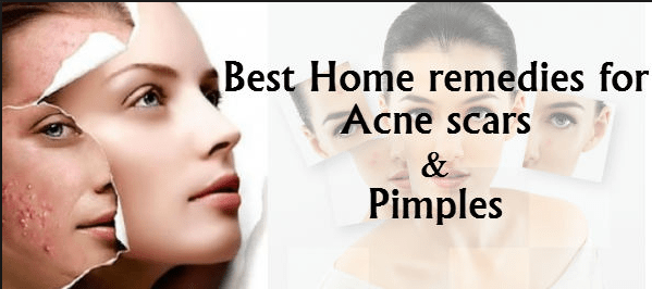 How to reduce pimples on face home remedies