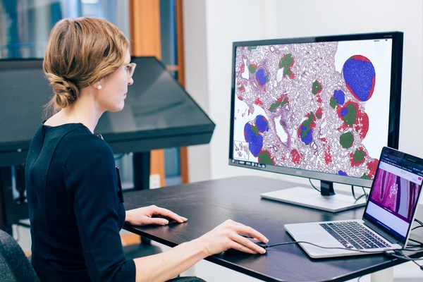 Translate images into discoveries, decisions, and diagnoses with Aiforia's AI-powered platform.