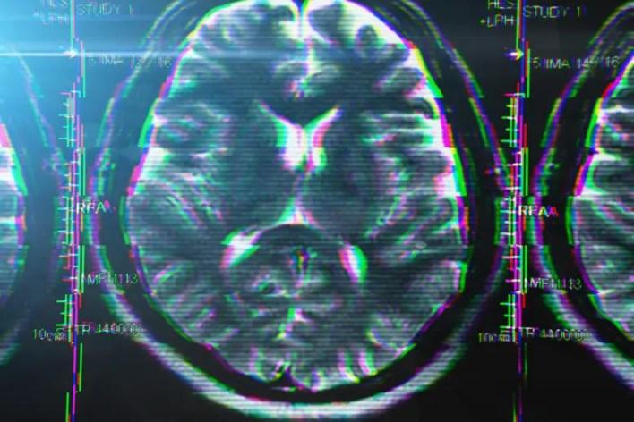 Beyin Aksaklığı Stres Bozukluğu Kavramı