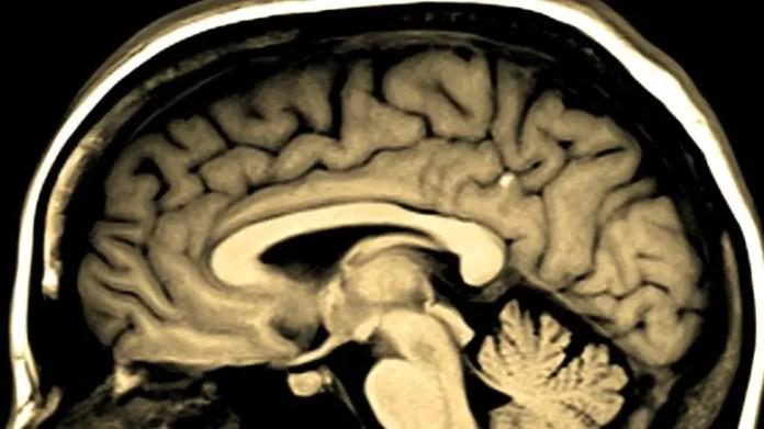 Neurological Brain Disease Concept