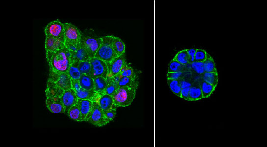 Pressure Can Revert and Stop the Growth of Cancer Cells