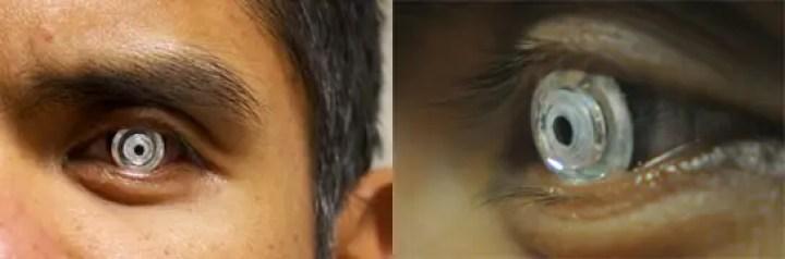 Telescopic Contact Lens Could Improve Eyesight