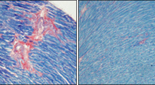 BubR1 Protein Could Fight Cancer & Aging