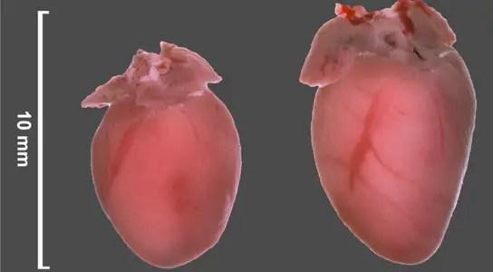 cardiac-hypertrophy-mice