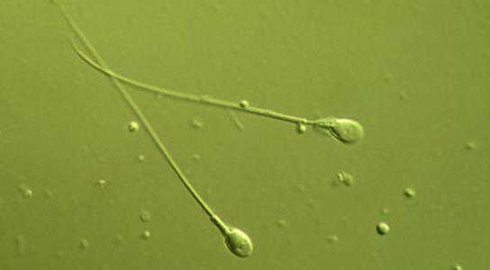 mutation-sperm