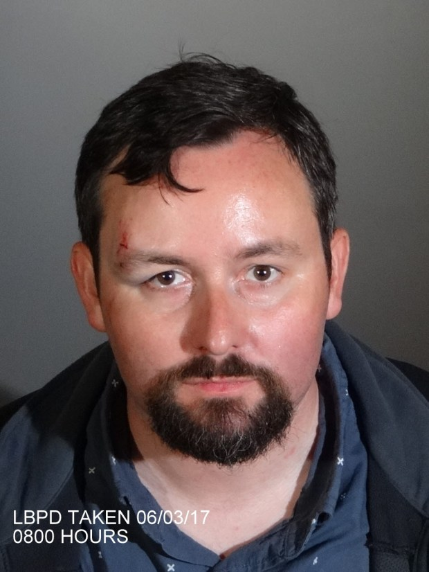 A booking photo of Devin Cotter shows an injury on his forehead that he told police he suffered when Councilwoman Jeannine Pearce pushed him to the ground. (Courtesy Long Beach Police Department)