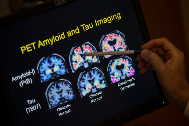HOLD FOR RELEASE ON TUESDAY, APRIL 10, 2018, 12:01 A.M. - FILE- In this May 19, 2015, file photo, R. Scott Turner, Professor of Neurology and Director of the Memory Disorder Center at Georgetown University Hospital, points to PET scan results that are part of a study on Alzheimer's disease at Georgetown University Hospital in Washington. Government and other scientists are proposing a new way to define Alzheimer's disease. basing it on biological signs, such as brain changes, rather than memory loss and other symptoms of dementia that are used now. (AP Photo/Evan Vucci, File)