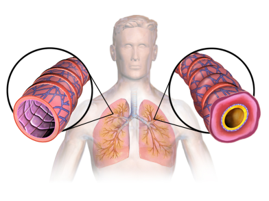 Asthma affects lungs and airways.