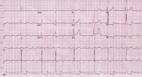 Admission ECG showing slow atrial flutter at an atrial cycle ...