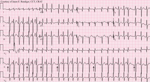 Multifocal atrial tachycardia - Wikipedia