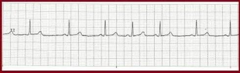 EKG Rhythm Interpretation Exam