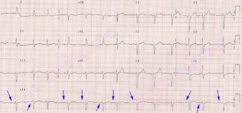 wandering atrial pacemaker - ekg - ecg - ankara - kardiyoloji ...