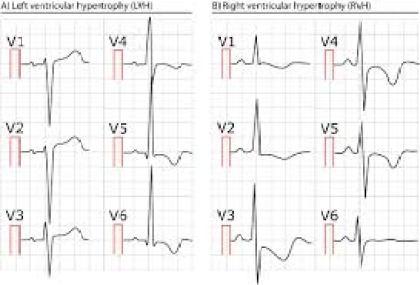 Right ventricular hypertrophy (RVH): ECG criteria & clinical  characteristics – ECG & ECHO