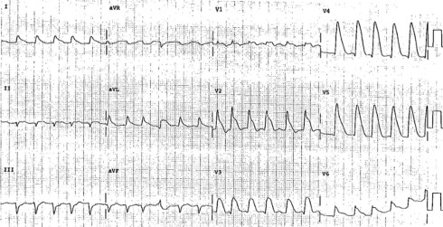 Image result for Shark Fin ECG LITFL