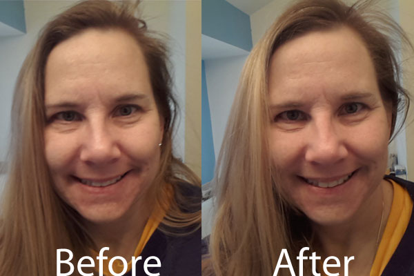 L'Oreal Paris BB Cream Before After