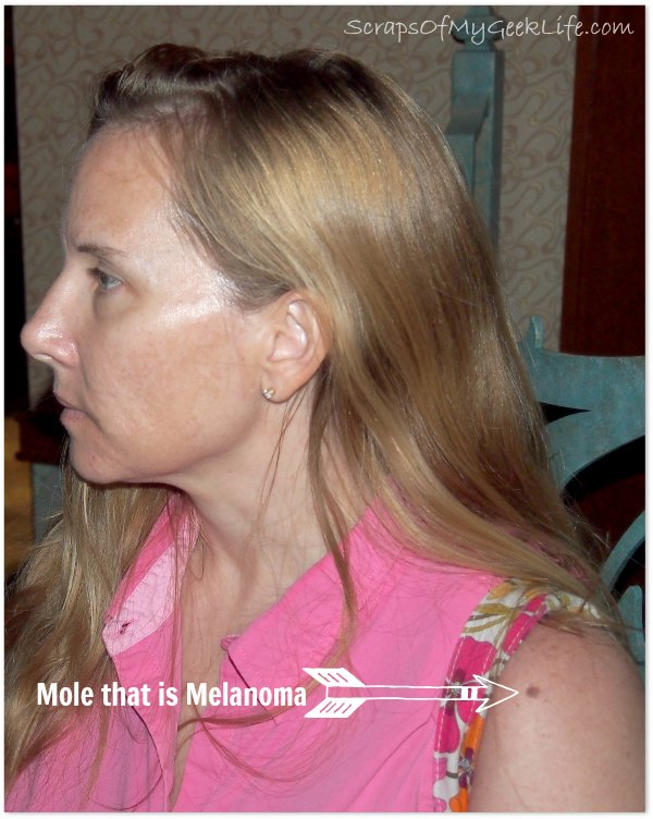 mole that is melanoma