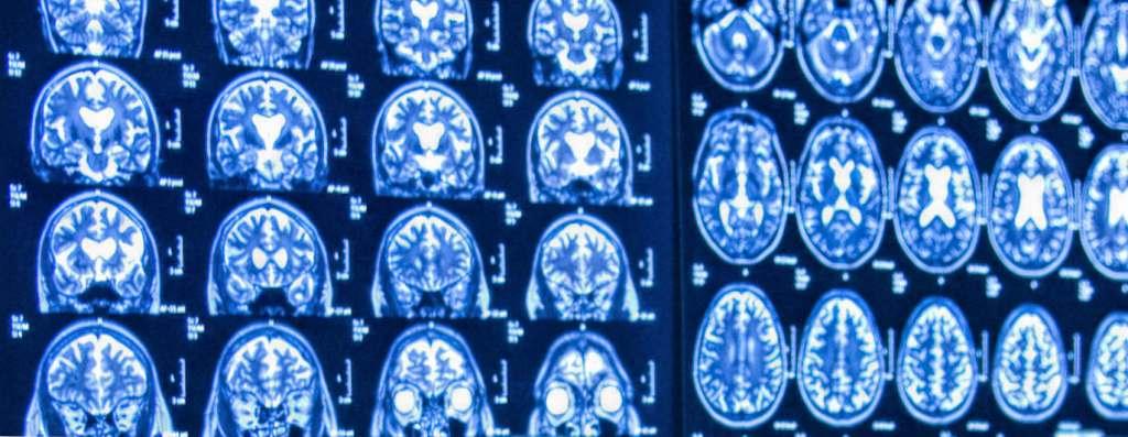 Neuropathology Transcription
