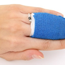 How to care for summertime stitches and staples