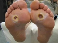 foot-ulcer