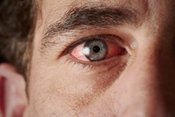 Glaucoma: Is this sneaky disease stealing your vision?