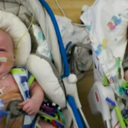 Formerly Conjoined Twins Finally Head Home