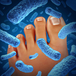 Fighting fungus and athlete's foot | Scrubbing In