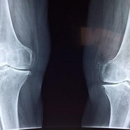 Why women should care for their bone health