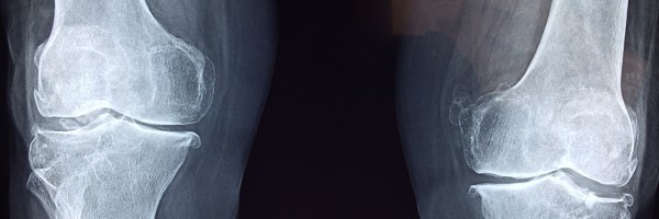 Women should care for their bone health