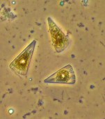 Believed to be Licmophora, a pennate diatom. Chloroplasts appear inside — the sites of photosynthesis. Photo courtesy of Merry Passage.
