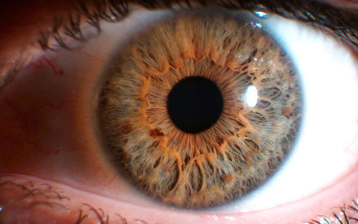costituzione mista iridologia