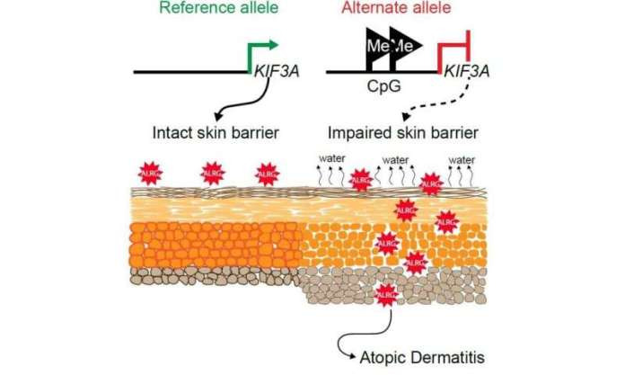 Gene variants help explain connection between skin disorder and food allergy risk