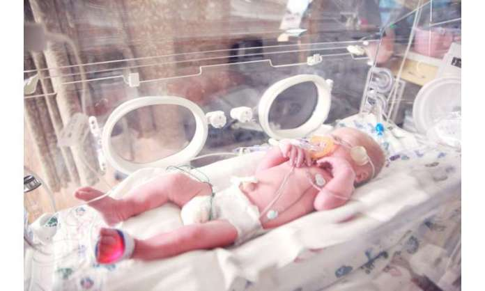 New machine learning tool predicts devastating intestinal disease in premature infants
