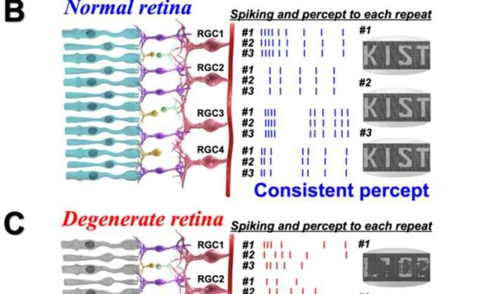KIST finds clue to improve artificial vision for patients with retinitis pigmentosa