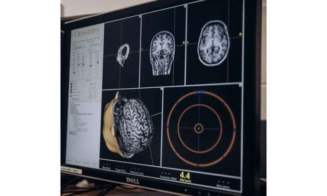 New brain-stimulating technology to relieve pain and depression